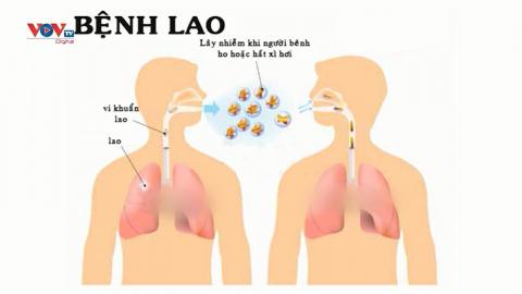 Bệnh lao phổi – Nguy hiểm rình rập